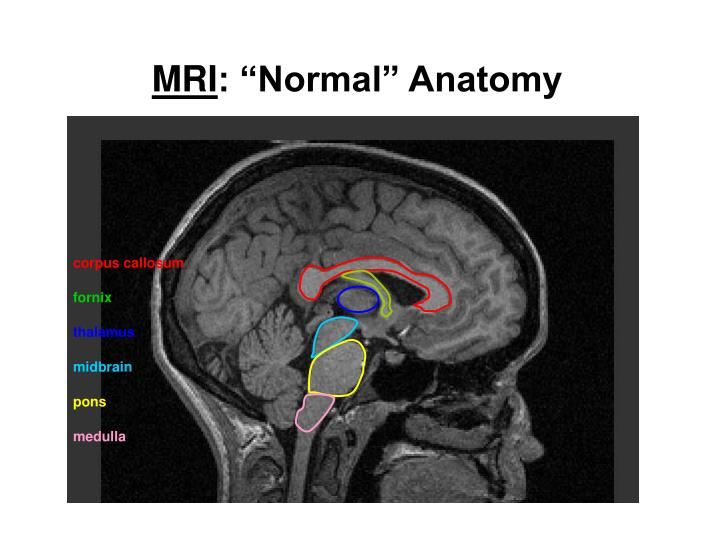 Midbrain Anatomy Mri Image Collections Human Anatomy Organs Diagram