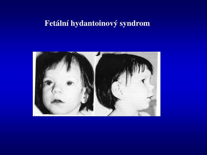 Fetální hydantoinový syndrom