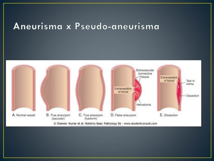 Aneurisma x pseudo aneurisma