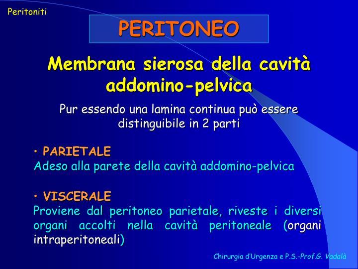 Peritoniti