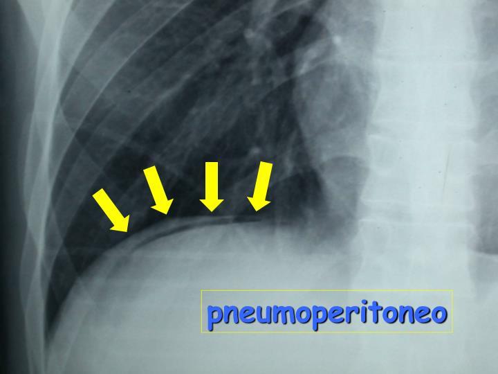 pneumoperitoneo