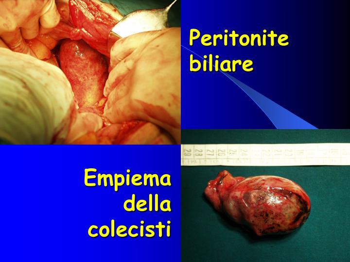 Peritonite biliare