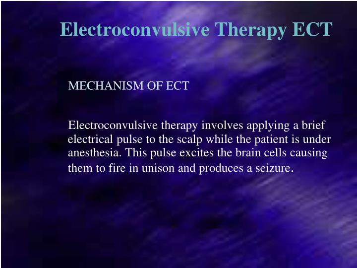 Electroconvulsive Therapy ECT