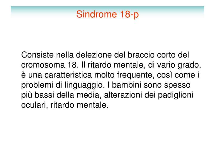 Sindrome 18-p
