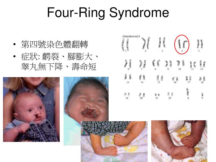 Four-Ring Syndrome
