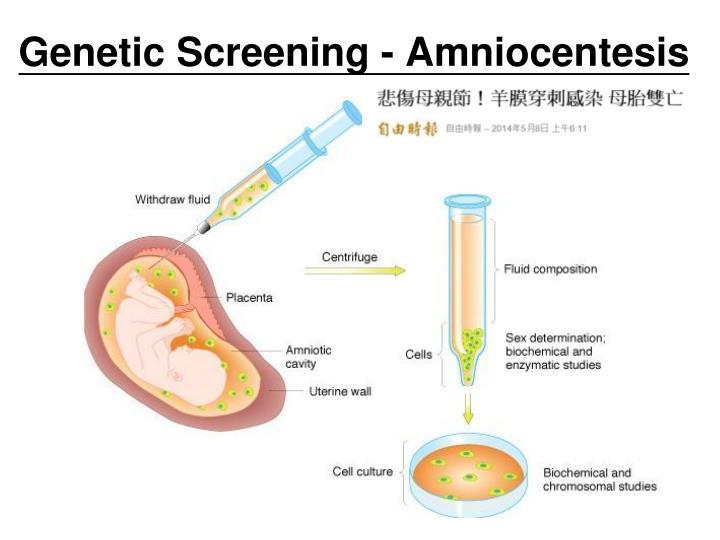 Genetic Screening - Amniocentesis