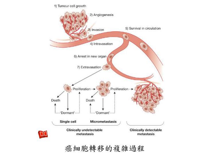 癌細胞轉移的複雜過程