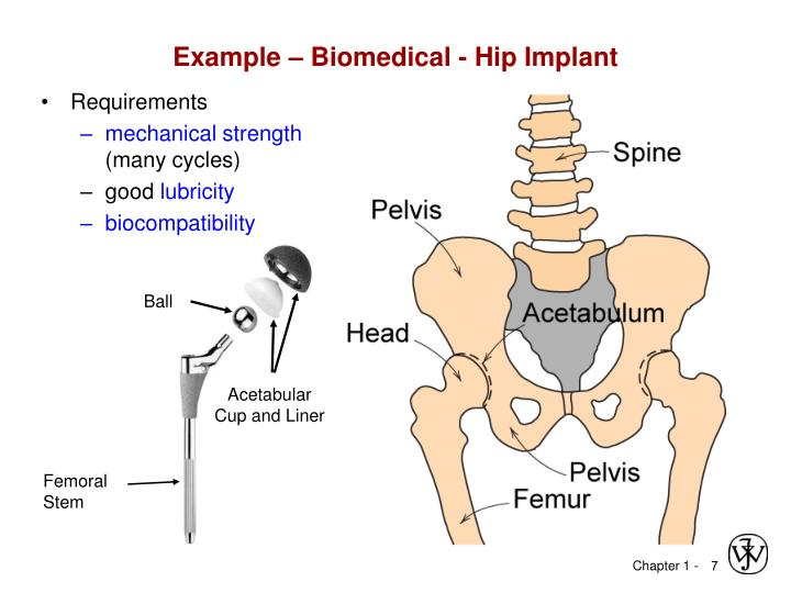 Example – Biomedical - Hip Implant