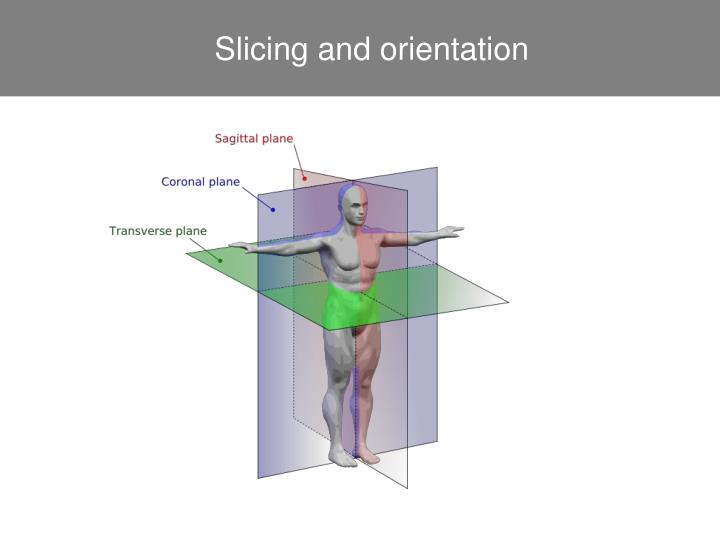 Slicing and orientation