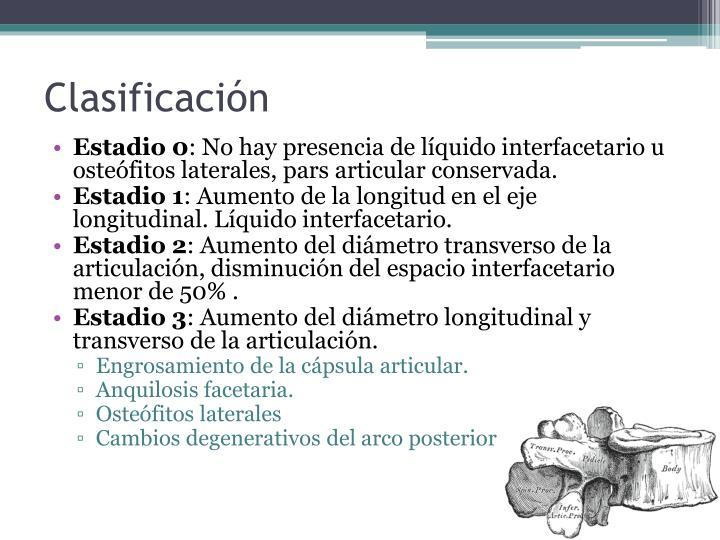 PPT - Síndrome Facetario PowerPoint Presentation - ID:6077105