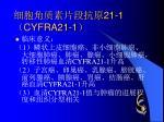 21 1 cyfra21 11