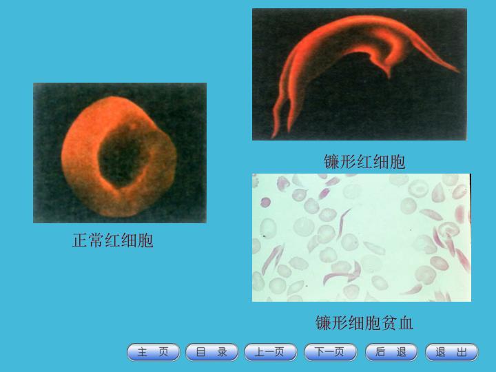 镰形红细胞