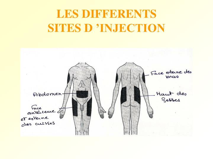 LES DIFFERENTS SITES D'INJECTION