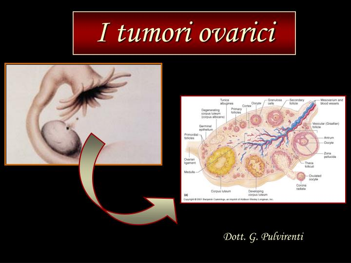 I tumori ovarici