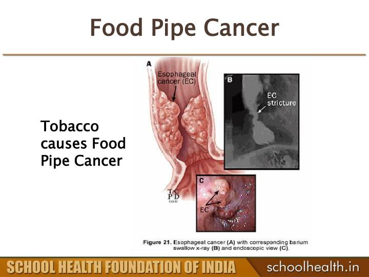 Food Pipe Cancer