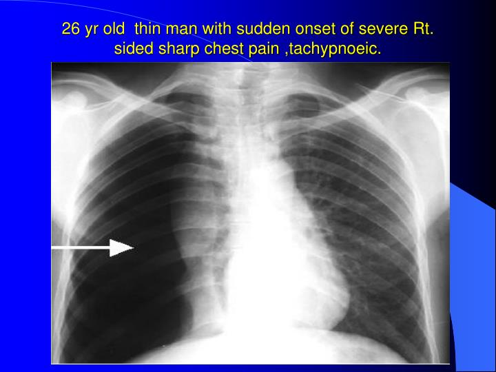 26 yr old  thin man with sudden onset of severe Rt. sided sharp chest pain ,