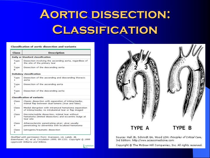 Aortic dissection:  Classification