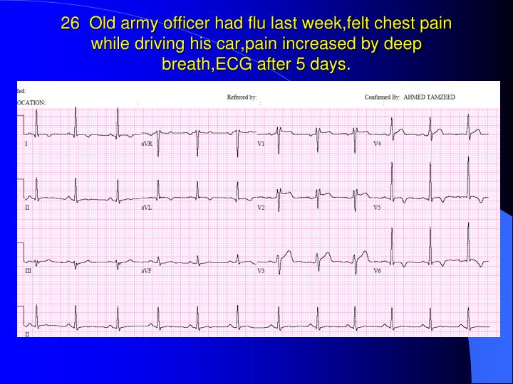 26  Old army officer had flu last week,felt chest pain while driving his car,pain increased by deep breath,ECG after 5 days