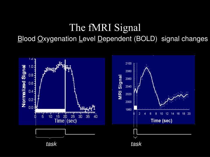The fMRI Signal