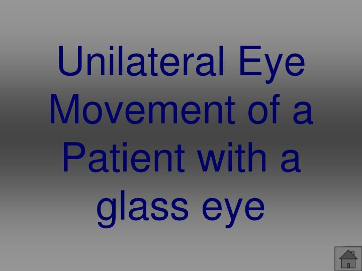 Unilateral Eye Movement of a Patient with a glass eye