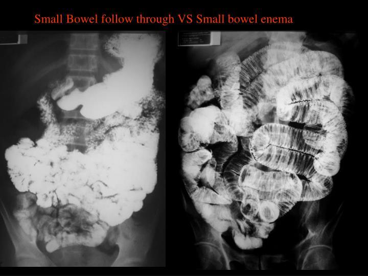 Small Bowel follow through VS Small bowel enema