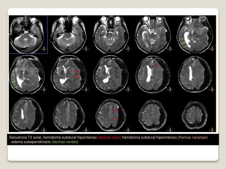 Secuencia T2 axial, hematoma