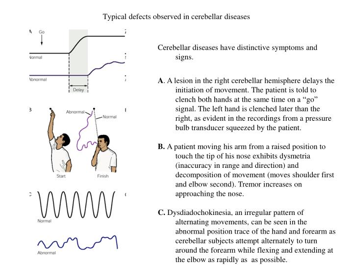 Typical defects observed in cerebellar diseases