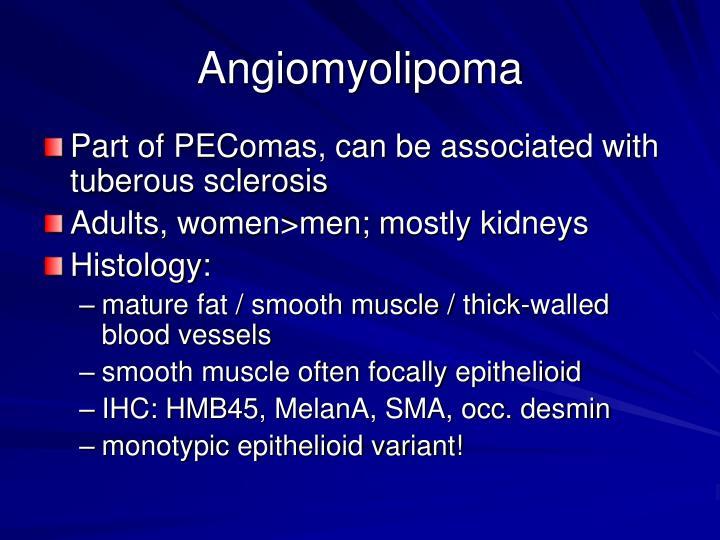 Angiomyolipoma