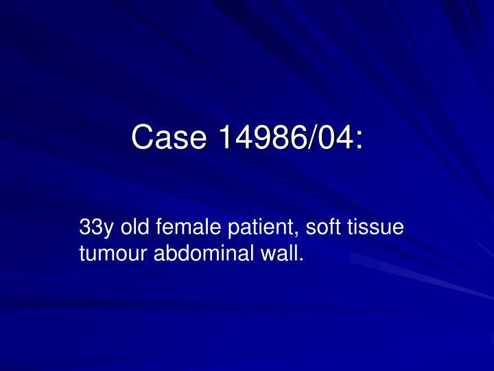 Case 14986/04: