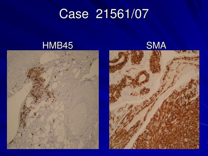 Case  21561/07