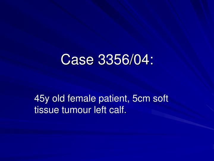 Case 3356/04: