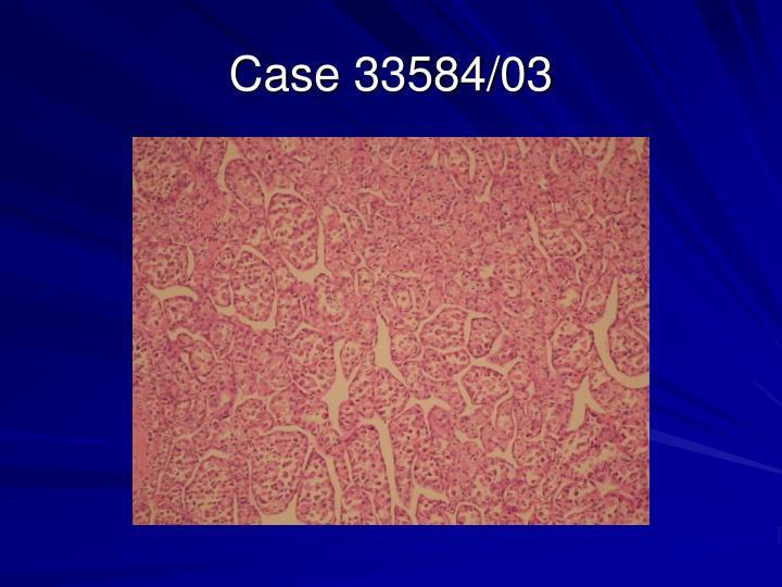 Case 33584/03