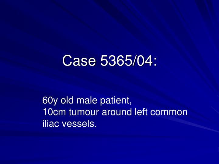 Case 5365/04:
