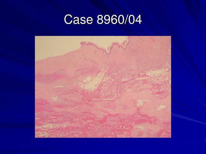 Case 8960/04
