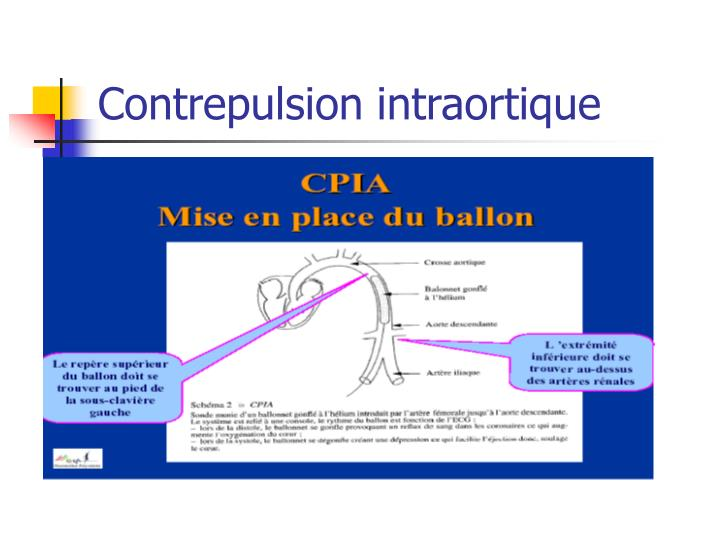 Contrepulsion intraortique