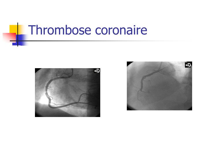 Thrombose coronaire