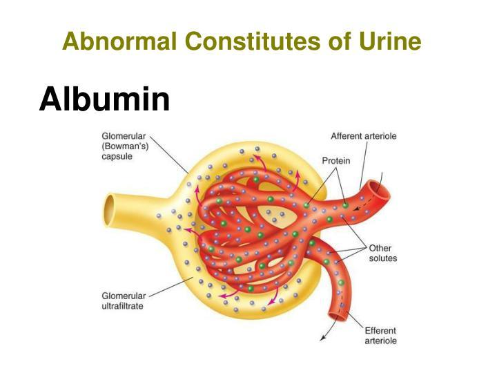 Abnormal Constitutes of Urine