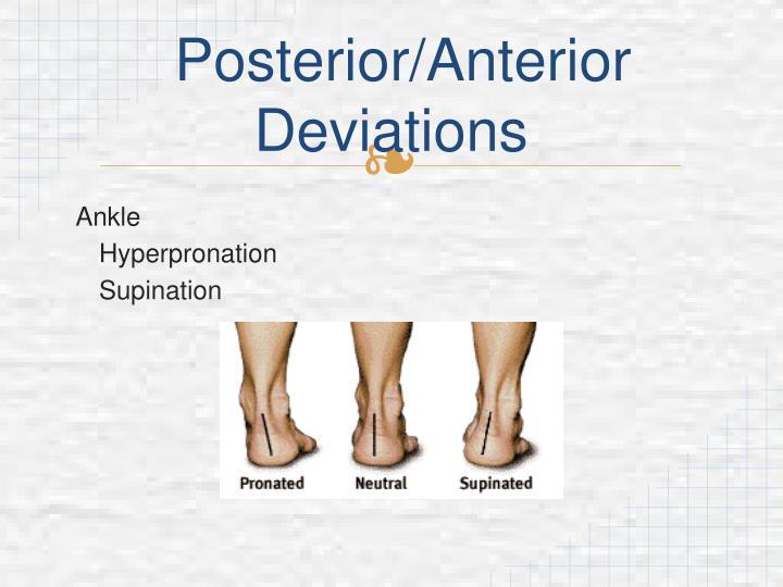 Posterior/Anterior Deviations
