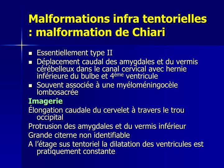 Ppt Diagnostic Antenatal D Une Malformation Cerebrale Foetale