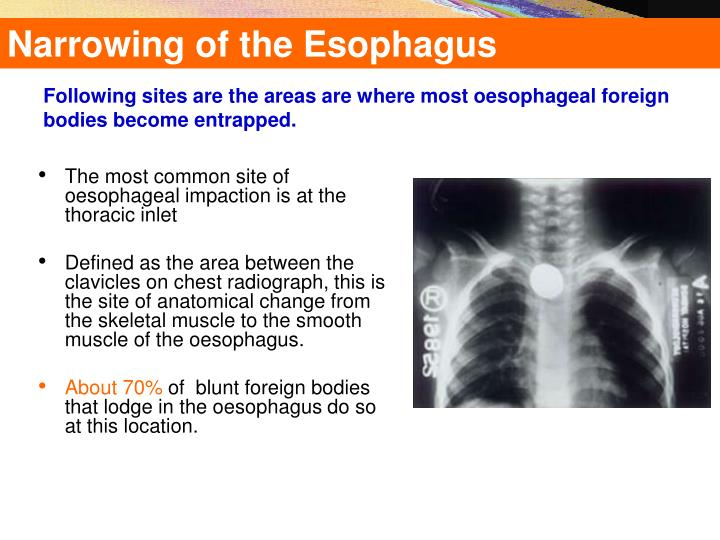 Narrowing of the Esophagus
