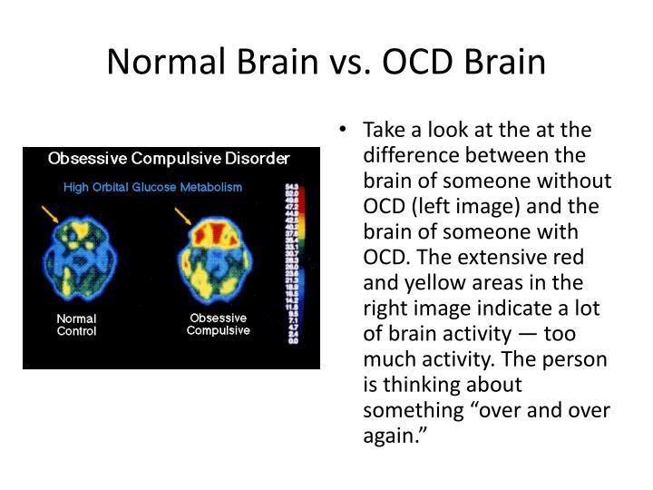 Brain tumor xray