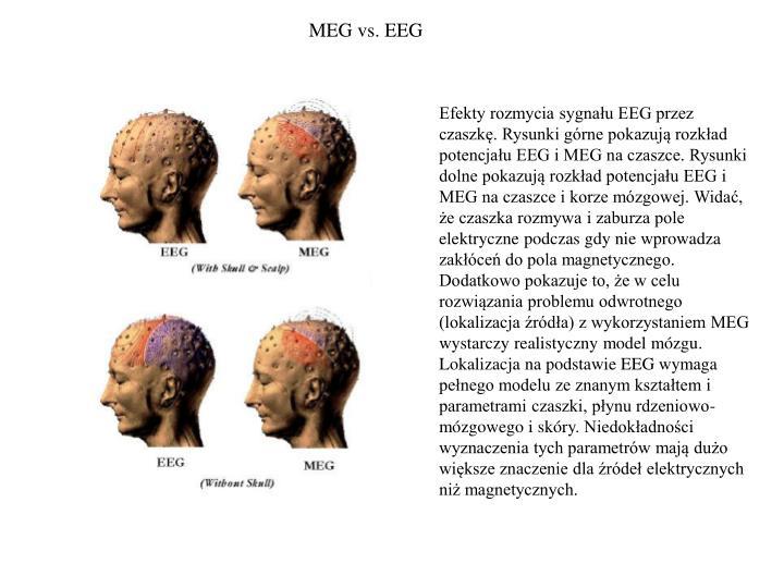 MEG vs. EEG