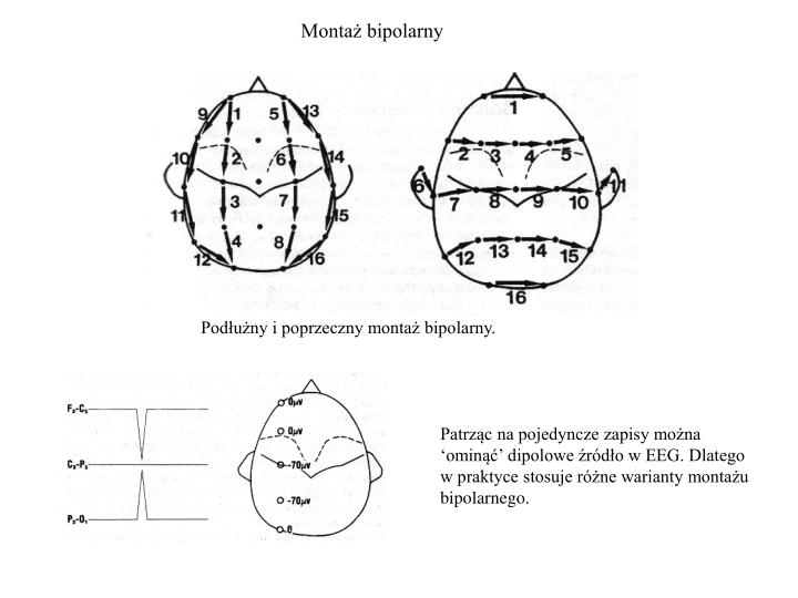 Montaż bipolarny