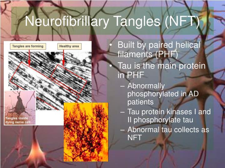 Neurofibrillary Tangles (NFT)