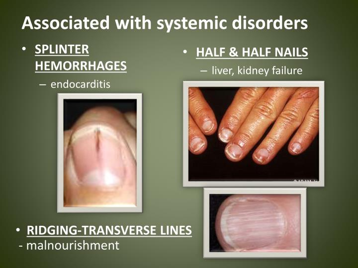 Associated with systemic disorders