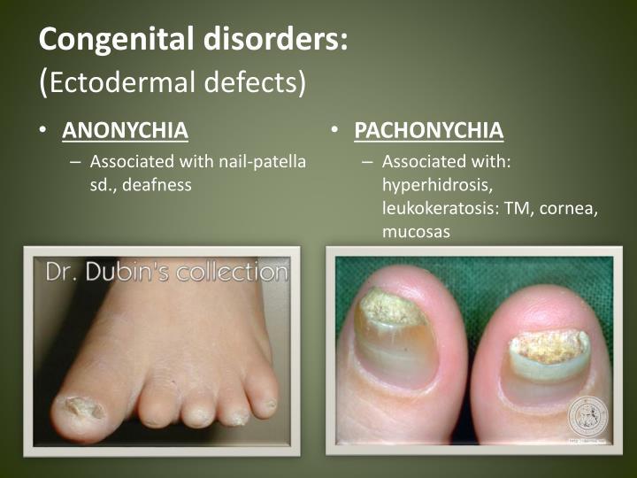 Congenital disorders: