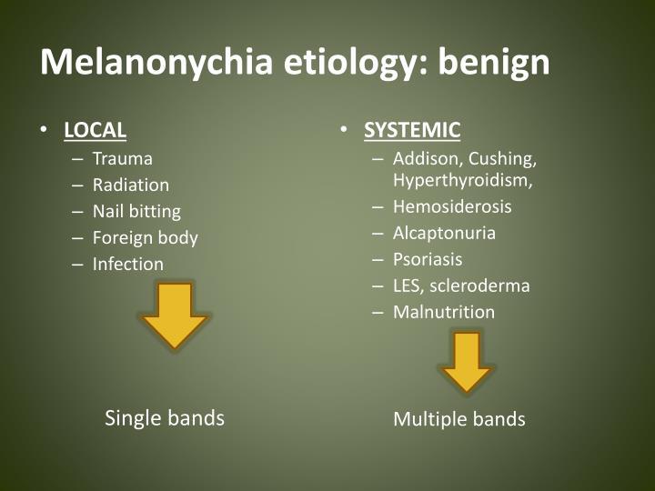 Melanonychia etiology: benign