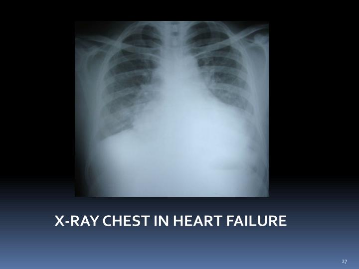 X-RAY CHEST IN HEART FAILURE