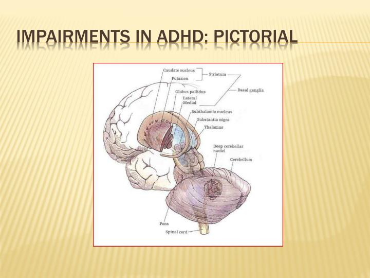 Impairments in ADHD: Pictorial