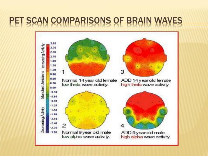 Pet scan comparisons of brain waves